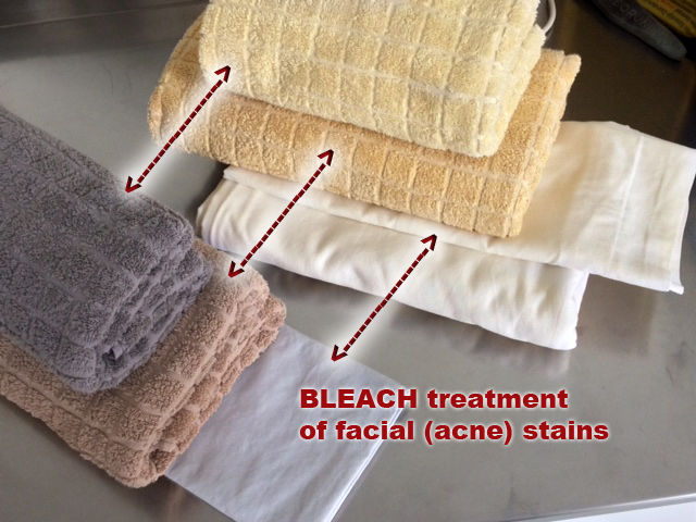 Towels Bedding Ruined By Acne Cream Given A 2nd Li Airbnb Community